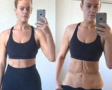 Lose weight around midsection fast